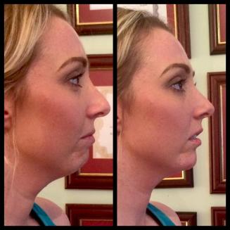 Chin Enhancement surgery in Newcastle, London & Sunderland