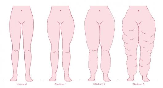 The Low Down On Lipoedema & Liposuction Treatment Available